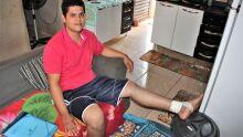 Jovem de MS tem doença que causa hemorragias constantes na perna