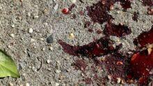 Morta por cachorro, criança teve cortes profundos no rosto e na cabeça, no Cristo Redentor