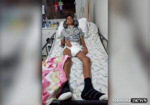 Menino eletrocutado tentando resgatar pipa precisa de tratamento; mãe vende rifa
