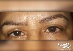 Sobrancelhas: erro de esteticista deixa marcas na pele e alma de cliente em Campo Grande