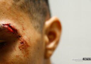 Machucado, homem 'invade' casa para fugir de agressões em bar no Santa Emília