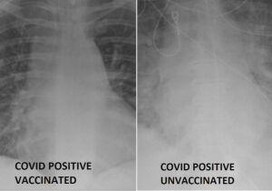Exame mostra diferença de pulmão de paciente vacinado e paciente não vacinado contra Covid-19