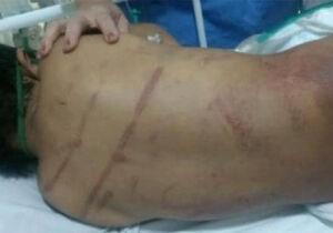 POLÊMICA: casal que torturou filho adotivo defendia 'palmada' na educação de crianças
