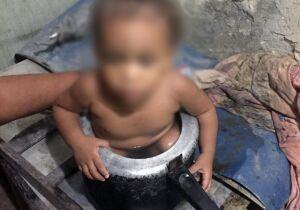Criança fica presa dentro de panela de pressão enquanto brincava