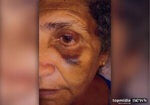 Auxiliar de limpeza é agredida a vassouradas por funcionário de escola municipal