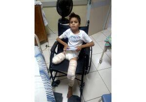 Menino que teve perna amputada deixa hospital e mãe pede ajuda