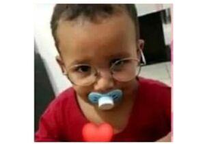 Criança que teve 90% do corpo queimado em incêndio morre na Santa Casa
