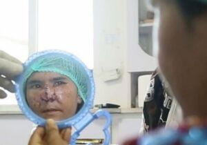 Mulher tem nariz arrancado com canivete pelo marido