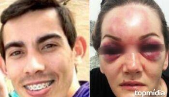Homem que desfigurou rosto da ex-mulher a pancadas já está 'enjaulado' em Naviraí