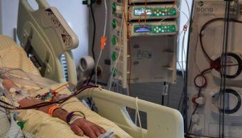 Brasil tem novas 587 mortes pelo covid em 24h