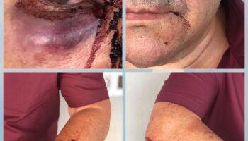 Casal de idosos espancado por lutador e veterinária está com medo de ameaças