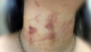 Homem surta, espanca mulher com chutes nas costas e a arrasta pela rua no Iracy Coelho