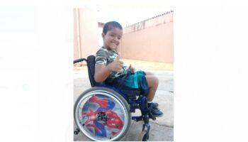 Mãe vende pequis e rifa para custear cadeira de rodas nova para o filho com hidrocefalia