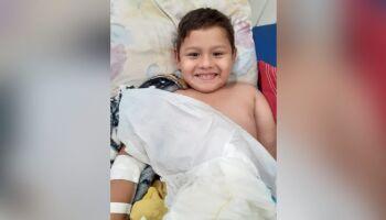 Criança de 6 anos morre após anestesias para imobilizar braço quebrado