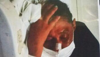 Homem que espancou esposa 'por não beber com ele' é preso em Aquidauana