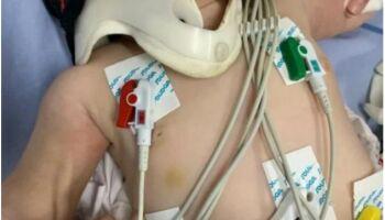 Em ação rápida, médica chama a PM após atender bebê com mais de 30 lesões