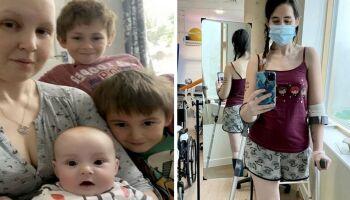 Para salvar bebê, grávida amputa perna após descobrir câncer