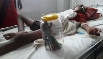 Adolescente engole 16 escovas de dente e prego a pedido de médico