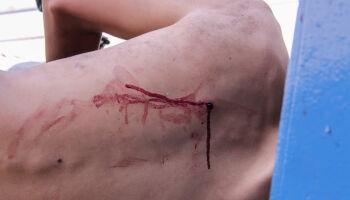 Rapaz fere pai com golpes de foice para defender mãe que estava sendo agredida