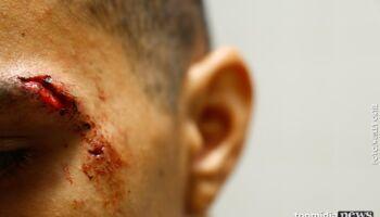 Sargento da PM é agredido a socos e mordidas após tentar separar briga de casal