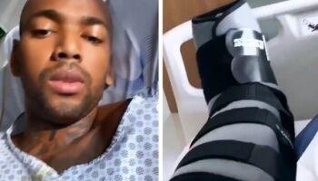 Nego do Borel sofre acidente de moto e passa por cirurgia