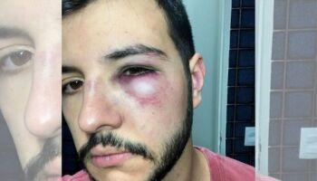 Ex-Globo, apresentador da Record reage a assalto e apanha no DF