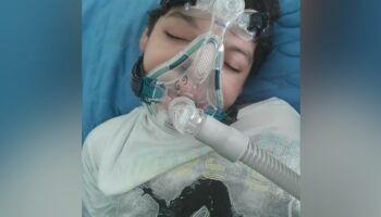 João Arthur tem microcefalia e mãe pede ajuda com remédios de crises convulsivas e respiratórias