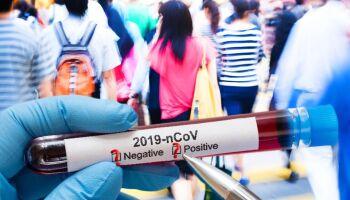 SEM PÂNICO: 'apenas' 7 mil pessoas transmitem covid em MS