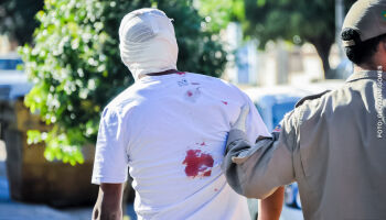 Homem reclama de ataque de cachorro e leva pauladas na cabeça no Caiobá