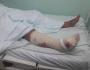 Marido mata Pitbull a marteladas para salvar esposa durante ataque