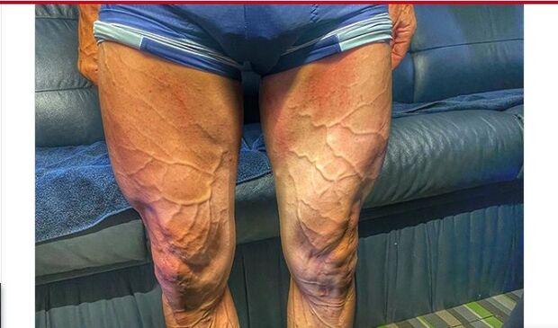 Ciclista mostra pernas após 4 horas de treino e impressiona fãs