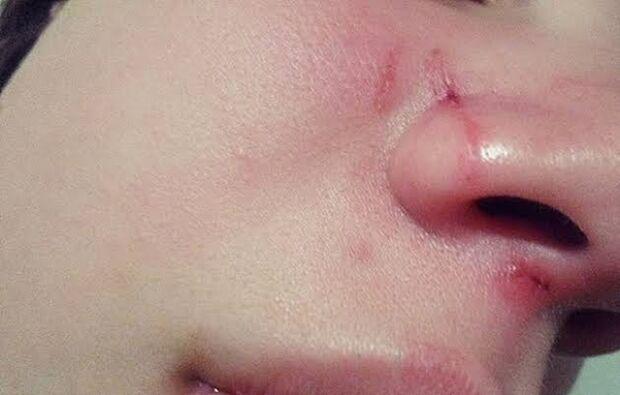 Moradora é agredida com socos e chutes por bandidos na Vila Sobrinho