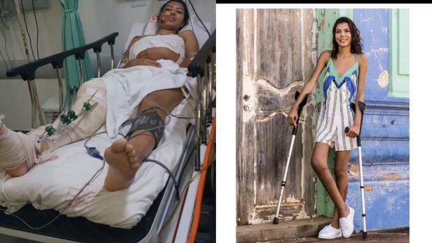 Nilda perderia a perna, não fosse a fé da mãe e doação de sangue de desconhecidos