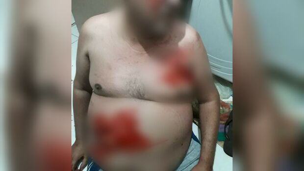 Vídeo: encapuzado que esfaqueou homem revirou apartamento no Nova Lima