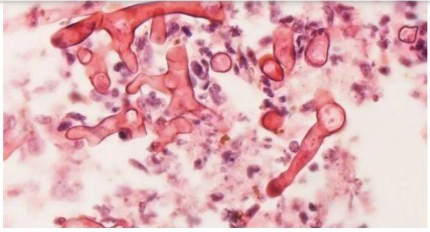 Com dois casos suspeitos de fungo negro em MS, doutor explica que baixa imunidade é um perigo