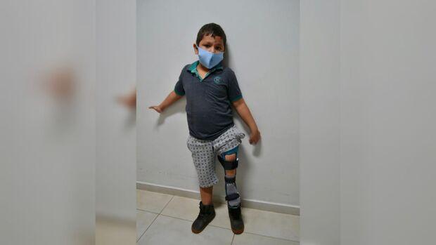 Aos 7 anos, Thiago ganha prótese personalizada e comemora em grande estilo
