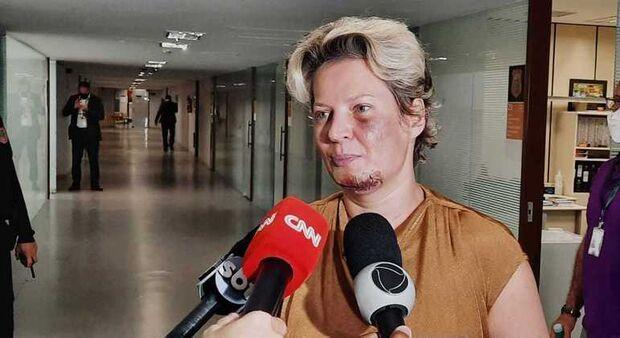 Joice Hasselmann insiste em 'atentado' e diz que não terá mesmo destino de PC Farias