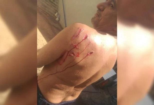 Vídeo: capivara ataca banhista e o deixa ferido em cena inusitada