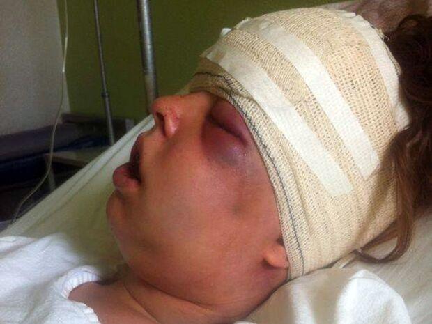 Jovem tem rosto desfigurado e quebrado em quatro partes, namorado é o principal suspeito