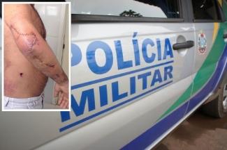 Dentista leva três tiros durante abordagem de policiais militares