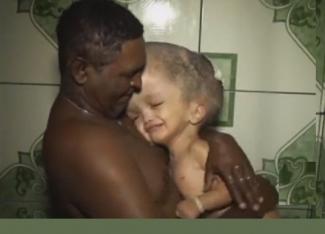 Pai busca tratamento para filha de dois anos com hidrocefalia