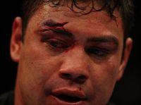 Lutador do UFC morre após sofrer infarto e ficar 13 dias internado