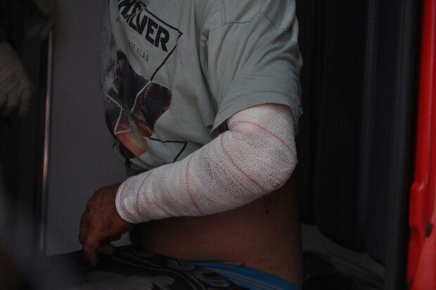 Homem de 48 anos é esfaqueado por suposto 'ladrão de casa' no Portal Caiobá