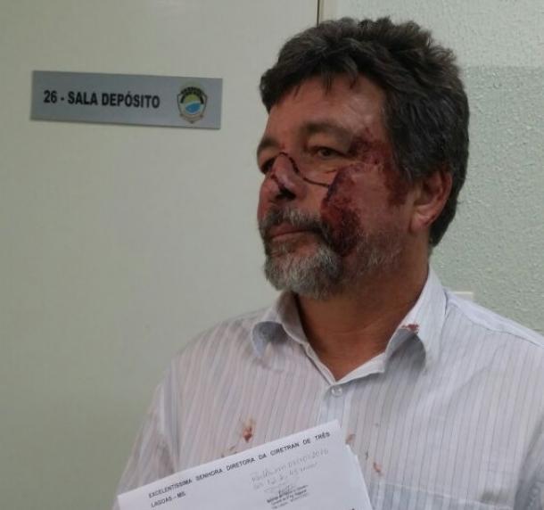 Advogado discute com delegado, leva soco no rosto e é preso em Três Lagoas