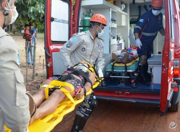 Mulheres ficam feridas em colisão frontal entre motocicletas em Coxim