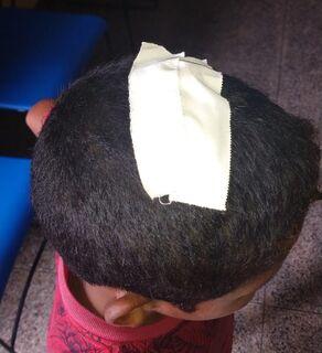 Criança tem ferro enfiado na cabeça ao ser agredido por madrasta