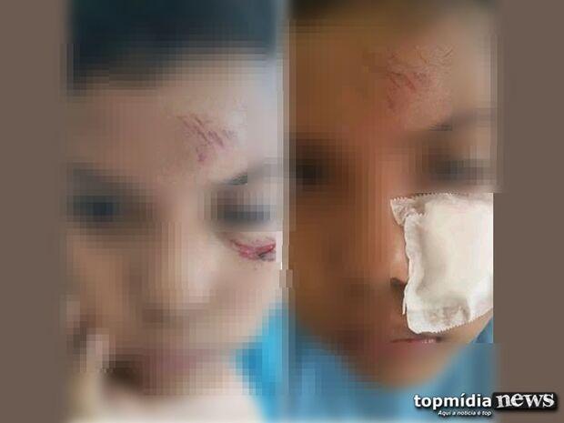 Podia cegar: criança de 8 anos corta o rosto em arame deixado no pátio de escola infantil na Capital