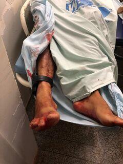 Dois bandidos morrem em troca de tiros com policiais durante operação sigilosa em MS
