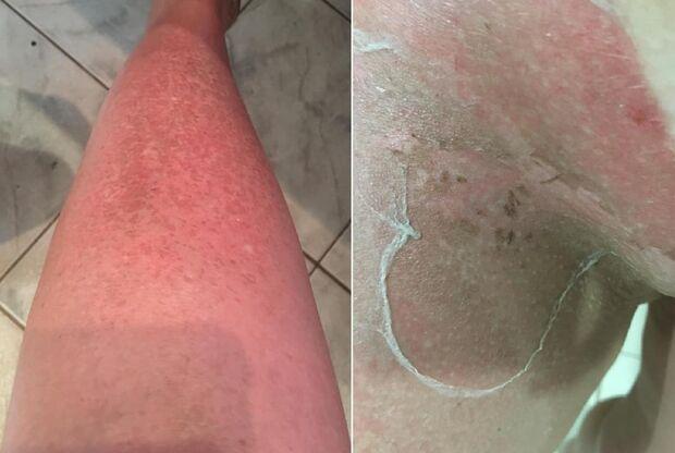 Mulher tem graves queimaduras após fazer bronzeamento em centro de beleza na Capital