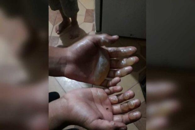 Mãe queima as mãos do filho por pegar moeda escondido
